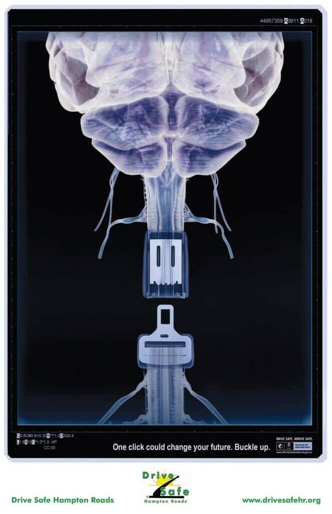 X-Ray_Poster-Buckle-up_One_Click-BRAIN-1210x1870