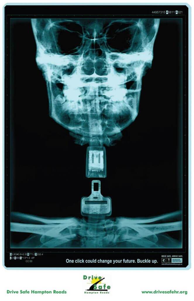 X-Ray_Poster-Buckle-up_One_Click-NECK-1210x1870