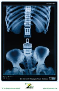 X-Ray_Poster-Buckle-up_One_Click-SPINE-1210x1870